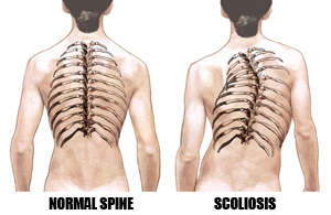 Low Back Pain, Neck Pain, Scoliosis