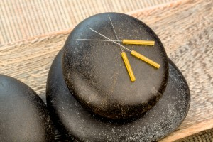 acupuncture needles sciatica, low back pain, houston, katy, memorial city, woodlands, kingwood, humble