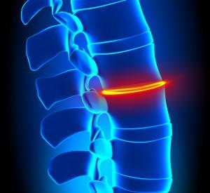 degenerative disc disease houston sciatica low back pain