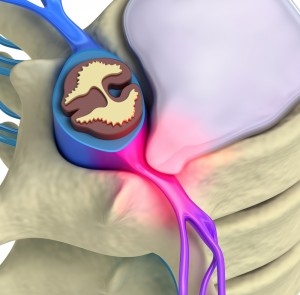 herniated disc, physical therapy, back pain, spinal nerve, Houston, Galleria, Katy, the Woodlands, Spring, Humble, Memorial City, motor vehicle injury, truck injury