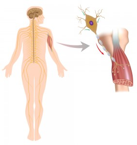 spinal muscular atrophy houston back pain