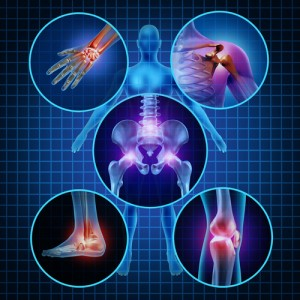 lumbar stenosis, cervical stenosis, spinal stenosis, arthritis, Houston, Sugarland, Woodlands, Katy, Spring