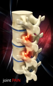 laminectomy, lumbar laminectomy, cervical laminectomy, lumbar stenosis, cervical stenosis, Houston