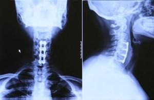 spine, injury, fracture, Houston, Katy, Sugarland, Woodlands, Memorial City, Kingwood