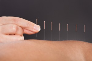 acupuncture, holistic, back pain, Houston, Woodlands, Katy, Memorial City, Sugarland, Texas Medical Center, Spring, Sealy, Baytown, Pearland, Beaumont, Galleria, Tomball, Conroe, Humble, Kingwood, Port Arthur, Galveston, Texas, TX, Dallas, Fort Worth, San Antonio, Austin