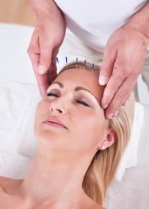 acupuncture, holistic, back pain, Houston