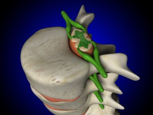 epidural injections, epidural steroid injections, ESI, Houston, Woodlands, Katy, Memorial City, Sugarland, Texas Medical Center, Spring, Sealy, Baytown, Pearland, Beaumont, Galleria, Tomball, Conroe, Humble, Kingwood, Port Arthur, Galveston