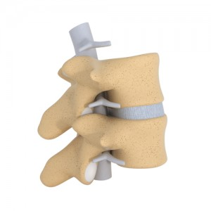 facet joint, spinal, pain, Houston, Woodlands, Katy, Spring, Sugarland, Sealy, Pearland, Baytown, Beaumont