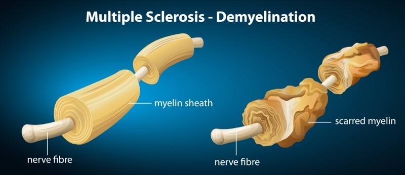 Multiple Sclerosis and Neurological Conditions that Affect ... Multiple Sclerose