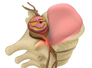 stem cell, spinal nerves, spinal cord injuries, physical therapy, Houston