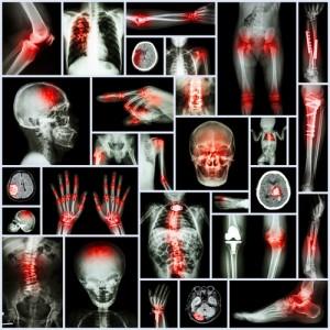 back pain, arthritis, osteoarthritis, spinal column, facet joints, Houston