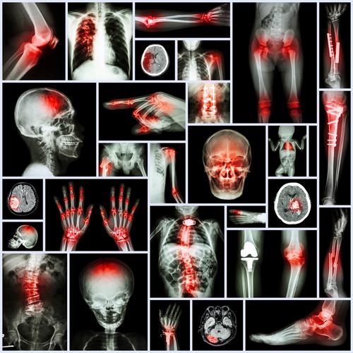 Arthritis pain houston