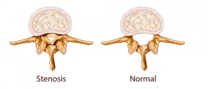 spinal stenosis, cervical stenosis, cervical laminectomy, lumbar stenosis, lumbar laminectomy, back pain, spinal canal, spinal nerves, Houston
