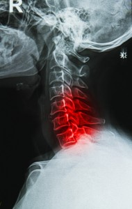 spinal stenosis, cervical stenosis, cervical laminectomy, lumbar stenosis, lumbar laminectomy, back pain, spinal canal, spinal nerves, Houston, Sugarland, Woodlands, Katy, Spring, Sealy, Baytown, Pearland, Beaumont, Galleria, Tomball, Conroe, Humble, Kingwood, Port Arthur, Galveston, Memorial City, Texas Medical Center  (TMC), Dallas, Fort Worth, San Antonio, Austin