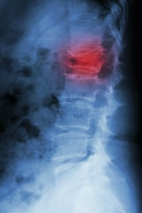 spinal discs, spinal nerves, spinal compression fracture, spinal fractures, back pain, physical exam, Houston