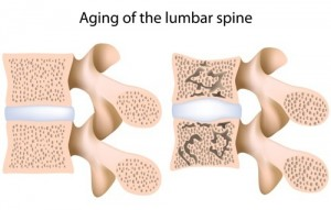 spinal discs, spinal nerves, spinal compression fracture, spinal fractures, back pain, physical exam, Houston, Woodlands, Sugarland, Spring, Katy, Pearland, Kingwood, Humble, Baytown, Beaumont, Galveston, Port Arthur, Memorial, Conroe, Sealy, Austin, San Antonio, Dallas
