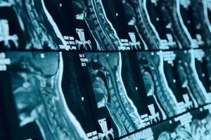 spinal discs, spinal nerves, back pain, spinal column, Houston