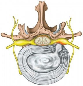 spinal discs, spinal nerves, back pain, spinal column, Houston