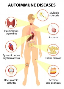 autoimmune disorder, back pain, spinal nerves, rheumatoid arthritis, non steroidal anti-inflammatory, NSAID