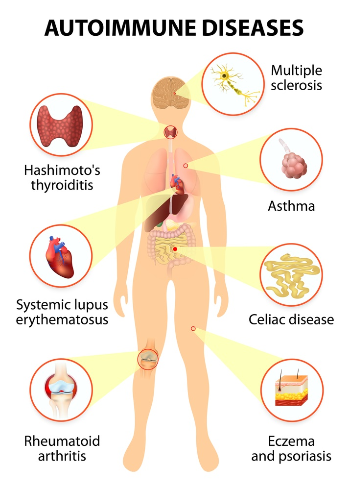 auto immune disease Potential application areas for autoimmune disease and arthritis biomarkers:  crohn's disease, ulcerative colitis, rheumatoid arthritis (ra), psoriasis and.