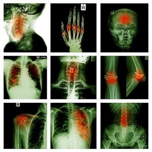 autoimmune disorder, back pain, spinal nerves, rheumatoid arthritis, non steroidal anti-inflammatory, NSAID, Houston, Sugarland, Katy, Woodlands, Baytown, Beaumont, Spring