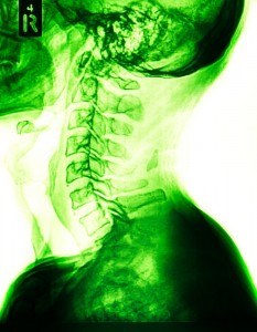 spinal discs, back pain, spinal nerves, physical therapy, degenerative disc disease, disc degeneration