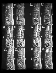 facet joint, low back pain, back pain, physical therapy, spinal column, spondylolisthesis, spinal