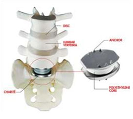 Artificial cervical disc replacement that relieves neck and arm pain caused by a herniated disc or for preserving motion in the neck is a procedure offered by KBNI.