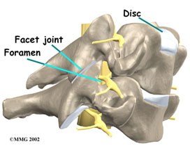 Cervical foraminotomy that relieves arm pain caused by nerve pressure in the spinal canal is a procedure performed at the KBNI.