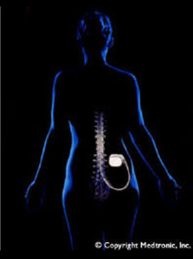 Spinal cord stimulation is one of the most successful techniques available for the treatment of intractable chronic pain syndromes of benign origin.