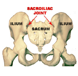 Sacroiliac Joint Pain is A Cause of Low Back Pain