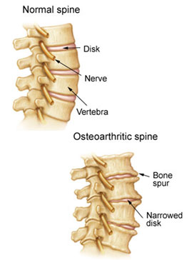 Spinal Arthritis occurs in the facet joints (also called vertebral joints) that connect vertebrae, a condition treated by the spinal arthritis specialists at KBNI.