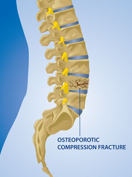 Osteoporotic Fracture – Condition Treated by the Kraus Back & Neck Institute